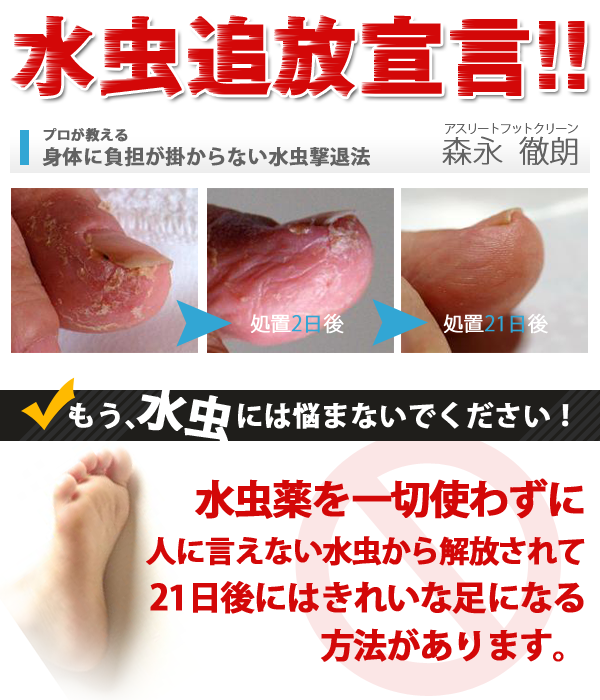 爪水虫 薬 塗り方